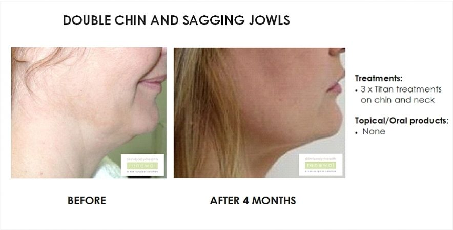before and after, before, after,double chin, sagging, jowls, titan, tighten, skin, face, chin,neck