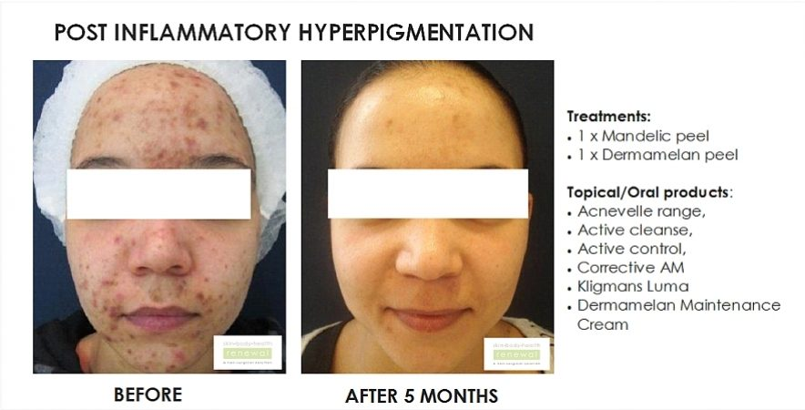 before and after, before, after,Post Inflammatory Hyperpigmentation, pigmentation,Mandelic peel, Dermamelan peel,acnevelle, active cleansem active control,correctives, lamelle, , dermamelan maintenance cream