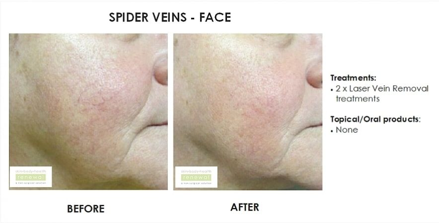 before and after, before, after,spider veins, face, laser, vein removal