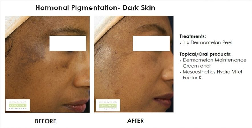before and after, before, after,pigmentation, dark skin, black skin, hormonal, blemishes, dermamelan, peel, hydra vital factor k