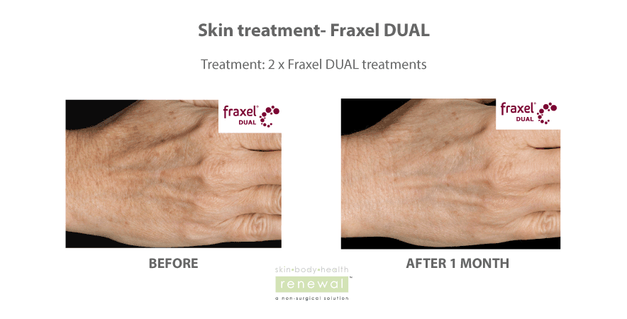 Fraxel DUAL treatment on hands for age spots and sun damage