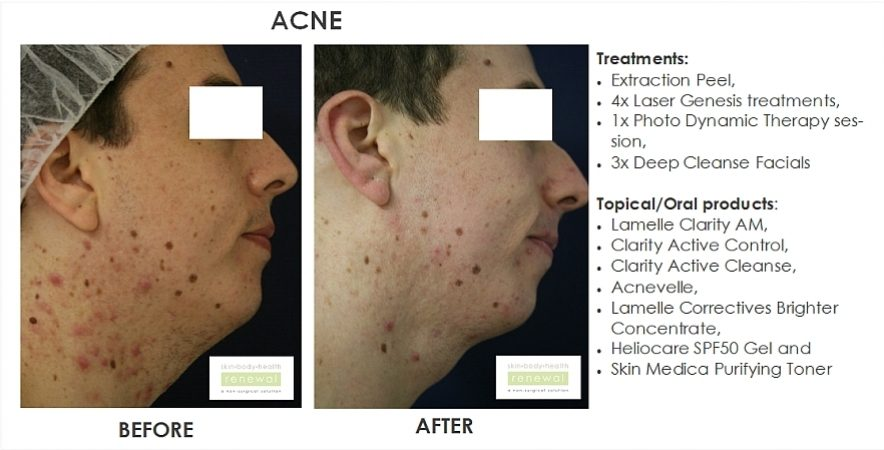 Acne | Gallery | Photos of before and After