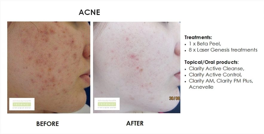 before and after,before, after,acne, acne scarring, spots, beta peel, chemical peel, breakouts, laser, laser genesis, acnevelle, clarity, lamelle