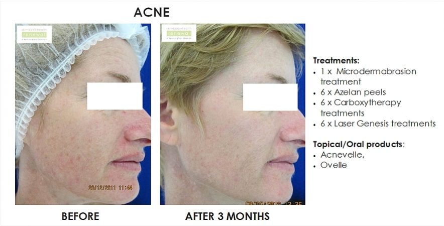 before and after, before, after,Pigmentation,Acne,dark spots, spots, breakouts, blemishes, Microdermabrasion,Azelan peel,chemical