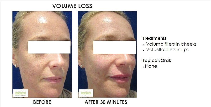 before and after, before, after,Volume Loss,Voluma, Cheeks, Volbella,Lips, filler, dermal filler