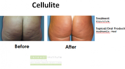 Before and After image for Treatment of Cellulite with Biopuncture
