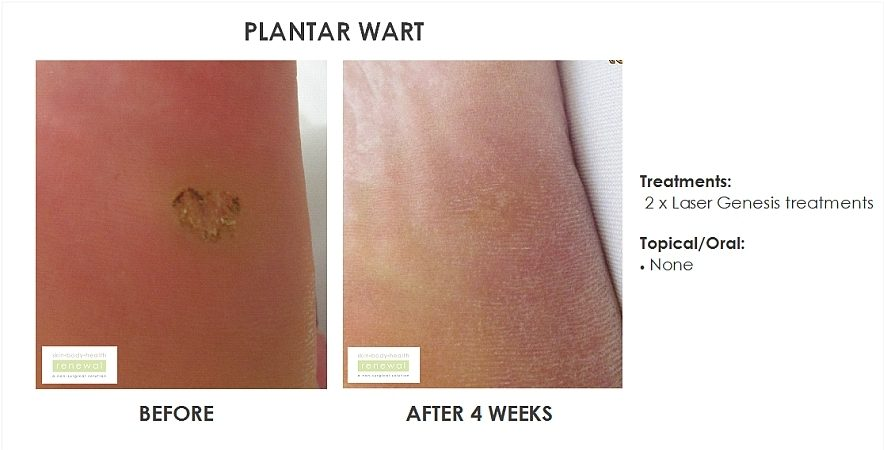 Plantar wart, 1 x laser genesis once every 2 weeks, no topical  before  after