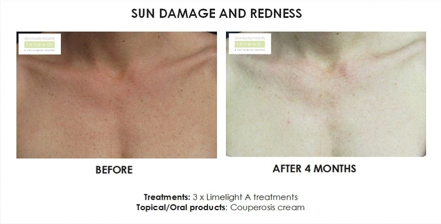 Sun damage and redness - 3x limelight a treatments and couperosis cream applied for 4 months