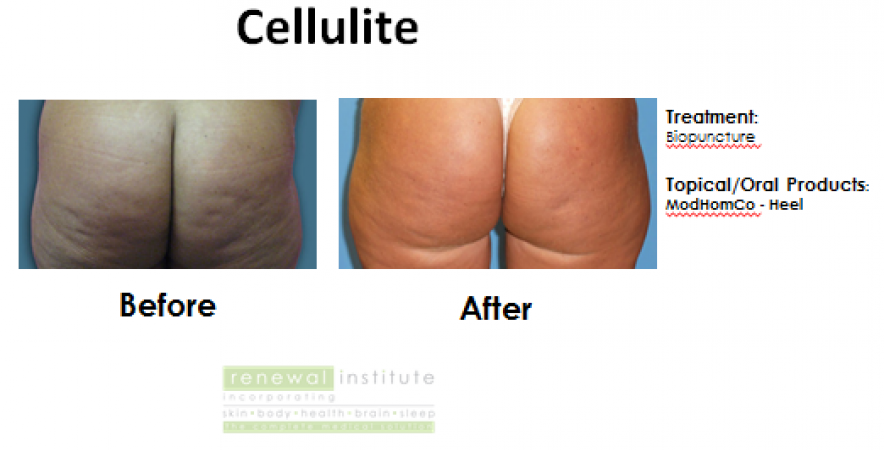 Cellulite Ba Biopuncture Slider Image